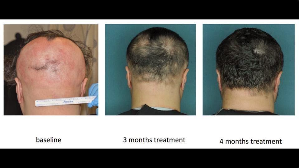 La caída de los cabello a los hombres hasta 30