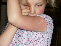 slap cheek virus in children
