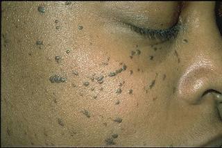 Imperfección caracerizada por un conjunto de pequeñas  pápulas de 1 a 5 mm que se asientan sobre todo en   la cara pero que también en el cuello, tórax y parte de la espalda.