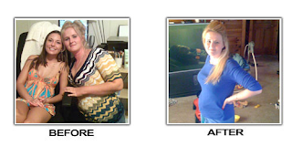 Amy uesd li shou slimming capsule Lost 73 Pounds