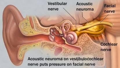 Neuroma Akustik , Penyebab Gangguan Pendengaran