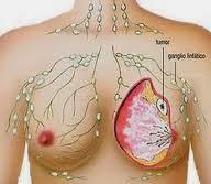 Cara Menyembuhkan Kanker Payudara