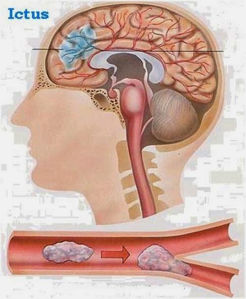 Patología de la Ateromatosis