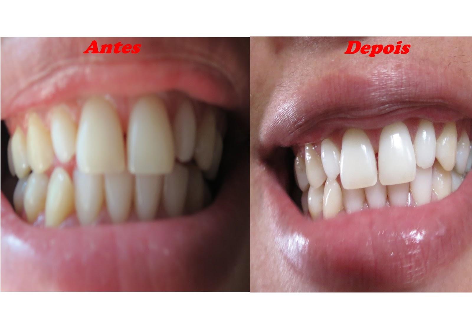Coizitas De Mulher Clareando Os Dentes Em Casa