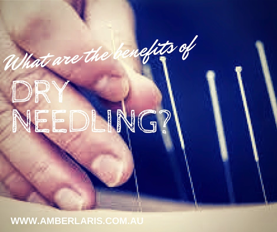 Dry needling is a relaxing and therapeutic procedure