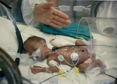 aborto, incubadora, viaje al corazon, vuelta al mundo, round the world, La vuelta al mundo de Asun y Ricardo aborto,
