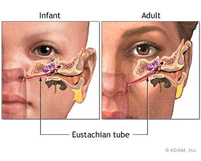 Ear tubes permanent adult