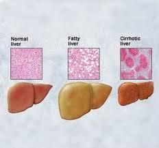 alimentos malos acido urico alimentos que no puedo comer con acido urico alto medidor de acido urico en sangre