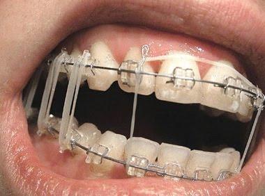 Freshman luis bibliograf a anotada libros e internet for W de porter ortodoncia