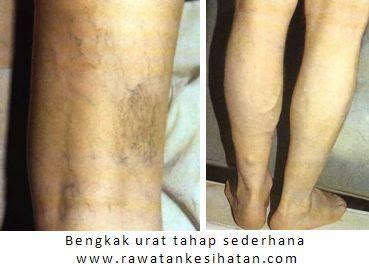 Kelemahan limpa pada tahap sederhana selalu disalahertikan sebagai Gout! oleh rawatan klasik (rawatan hospital)