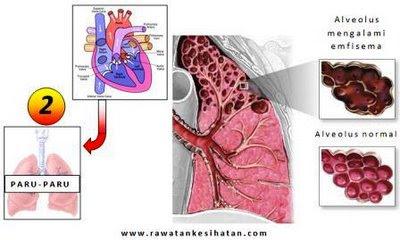 Paru-paru yang lemah menjejaskan sistem log 2
