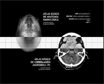 Atlas de Correlación Anatomica RX y TAC Menarini | booksmedicos