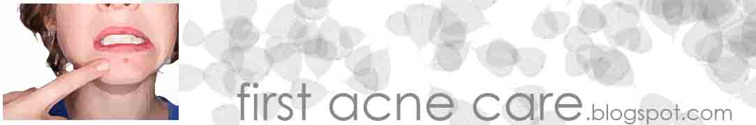 first acne care