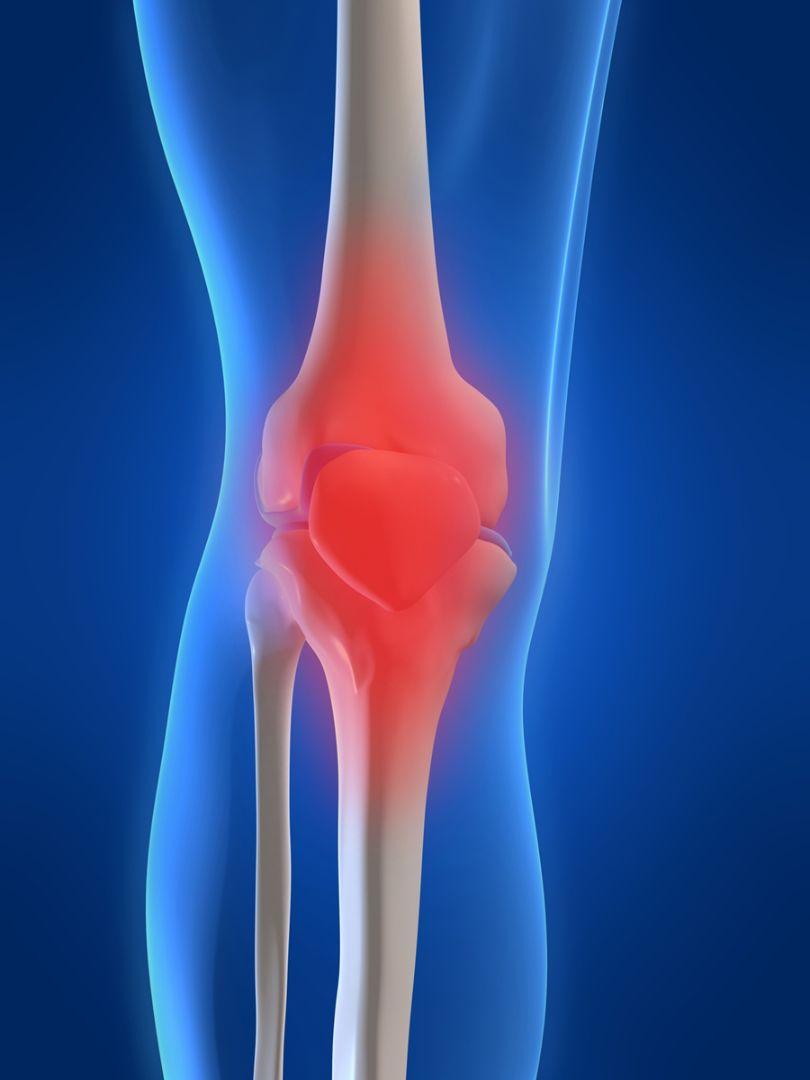nonsteroidal arthritis medications