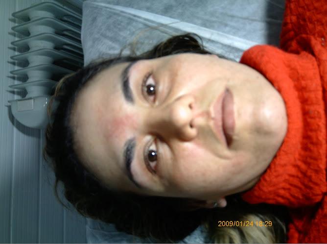 Tratamento de Melasmas