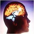 ak%C4%B1lsa%C4%9Fl%C4%B1%C4%9F%C4%B1diyeti Akıl Sağlığı Diyeti
