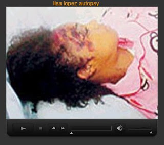 Left-Eye in death ... from a car accident. Where she ... sustained ...