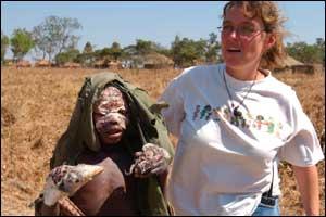 Enfermeira do MSF atende menino ferido em Angola