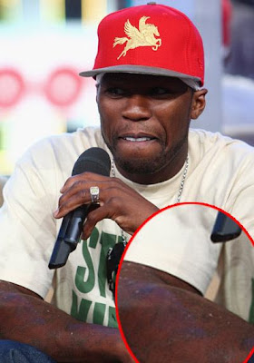 50 cent tattoos removed for 50 cent tattoos removed