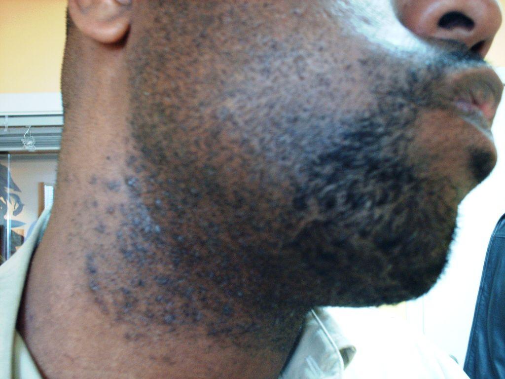 Pseudofolliculitis+barbae