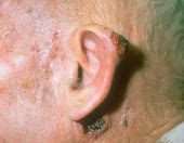 cancer de piele imagini