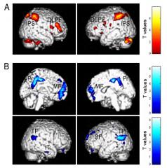 Imágenes del cerebro y las partes activas