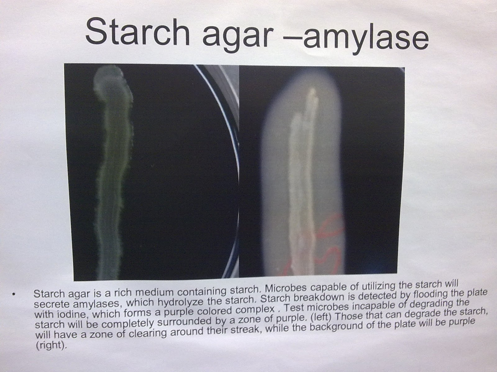 fungal and bacterial amylase during starch breakdown biology essay Role of fungal enzymes in food processing adequate starch breakdown during the barley brewing bacterial (x-amylase starch liquefaction of.