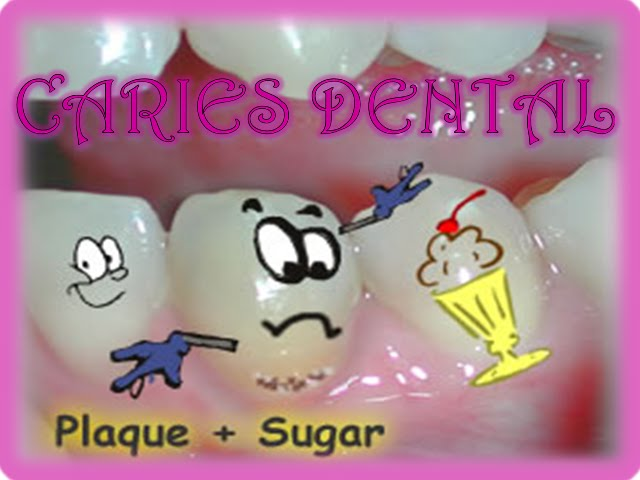 Caries Dental...!