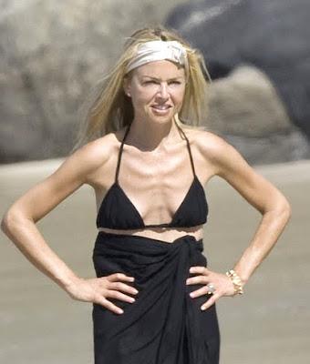 Rachel Zoe, anorexia, anorexic