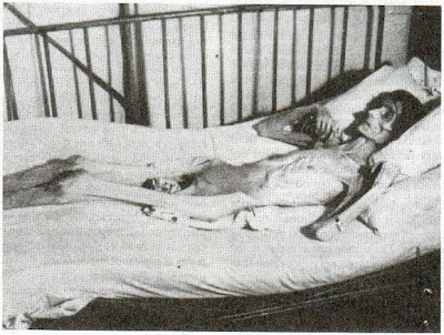 anorexic woman on deathbed