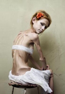 bulimia, anorexia