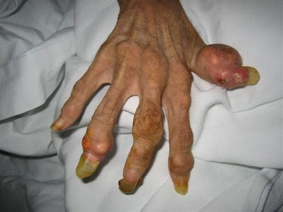 anorexia, hand, 46-year-old woman