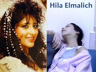 anorexia Hila Elmalich