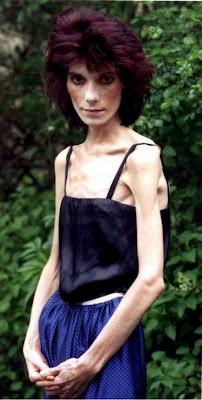 Samantha Kendall, anorexia
