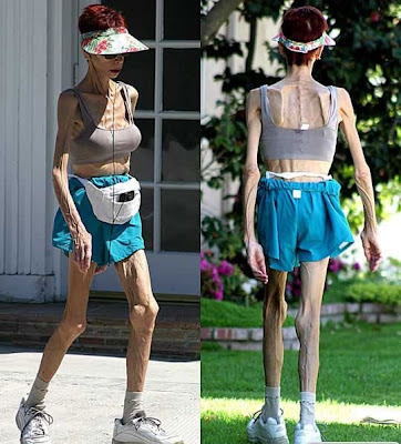 anorexic older woman