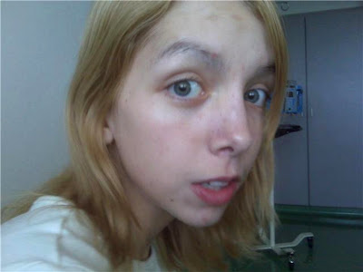 Olivia, anorexia