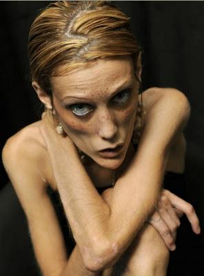 http://3.bp.blogspot.com/_10yYjoTIYE0/TRpFcadf07I/AAAAAAAAD1U/31oEWgjQUD0/s400/Isabelle+caro+anorexia+%252315.jpg