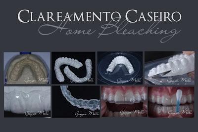 Clareamento Dental Caseiro Araujo E Ginger Odontologia Estetica