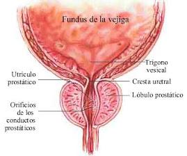 Prostata 1.Hipertrofia(agrandamiento) Prostatica Benigna(HPB)