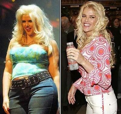 El Antes y Despues de la Estrellas - Anna Nicole Smith