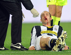 Chiellini sufrió una rotura en su nariz