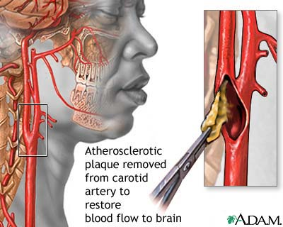 [endarterectomy-picture.jpg]