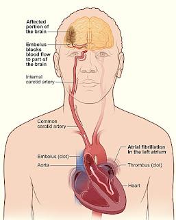 [stroke+-+atrial_fibrillation_.jpg]