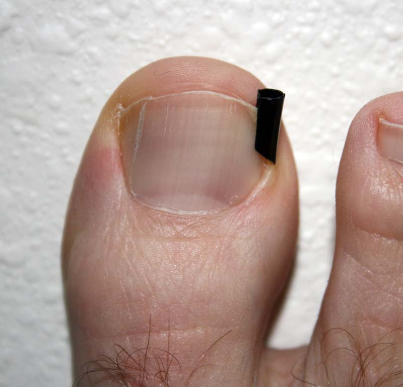 Tutorial] How To Fix An Ingrown Toenail (Pictures) | How To Wiki