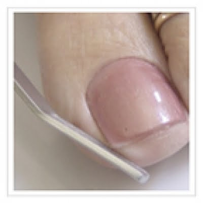 Images Ingrown toenail filing.