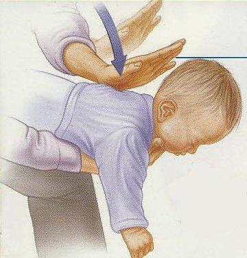 Cara Menangani Bayi Tersedak Silabus Rpp Sd Smp Sma