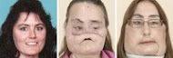 ศัลยกรรม ตกแต่งใบหน้า ถูกผัวยิงแสกหน้า