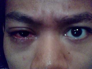 Screen shoot flu mata saya