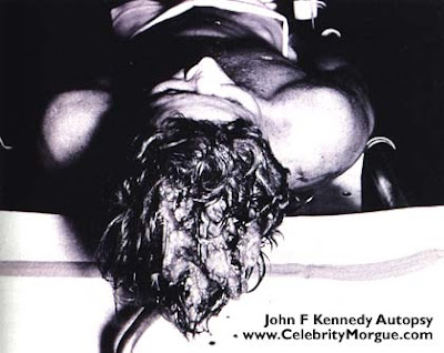 John F. Kennedy Autopsy
