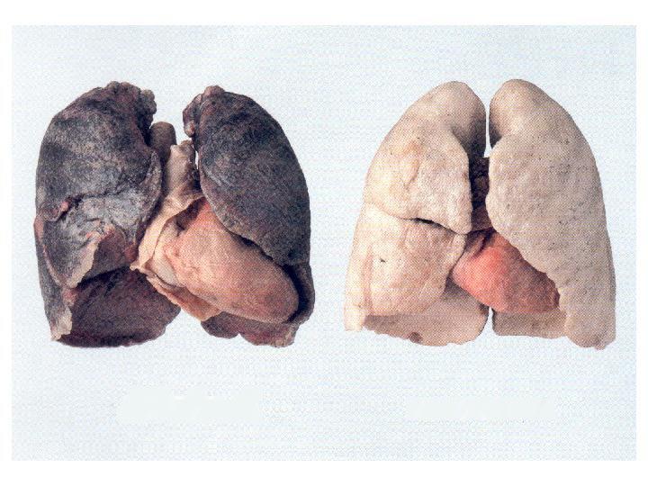 medizin f r das 21 jahrhundert fast jeder zweite raucher ist nach 30 jahren qualmen tot. Black Bedroom Furniture Sets. Home Design Ideas